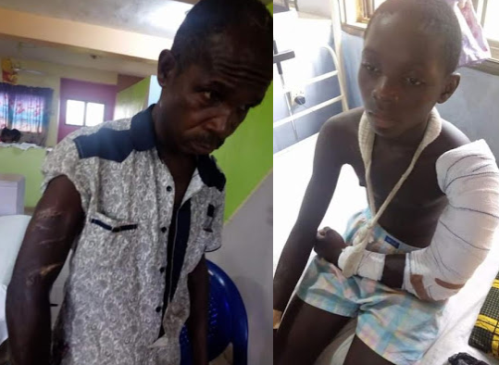 15-year-old Boy And His Father Brutally Attacked With Machete In Delta State