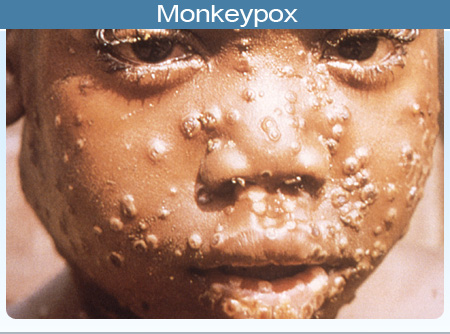 Monkeypox Spreads to Akwa Ibom