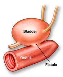 Beneficiaries Share Ordeal with Fistula